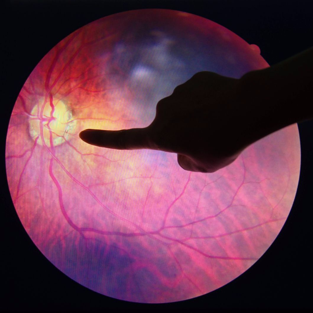 AMD, Age-Related Macular Degeneration, Ophthalmology