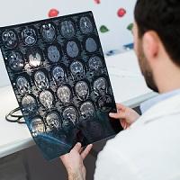 Females Underrepresented in Traumatic Brain Injury Studies