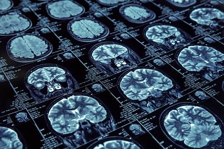 atrial fibrillation associated with brain injury