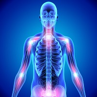 Plasma Exchange May Be Effective Treatment for CRPS | MD Magazine