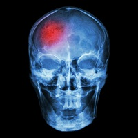 The True Cost of Chronic Subdural Hematoma | MD Magazine