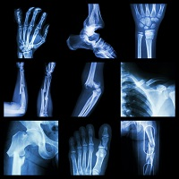rheumatology, plaque psoriasis, rheumatoid arthritis