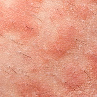 atopic dermatitis, dermatology, michael severino, upadacitinib