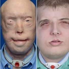 NYU Langone Surgeon Completes Most Extensive Face Transplant
