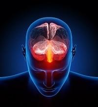 Migraines, Cerebrospinal Fluids, cerebral sodium, 23Na, MRI