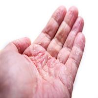 psoriasis, guselkumab, tremfya